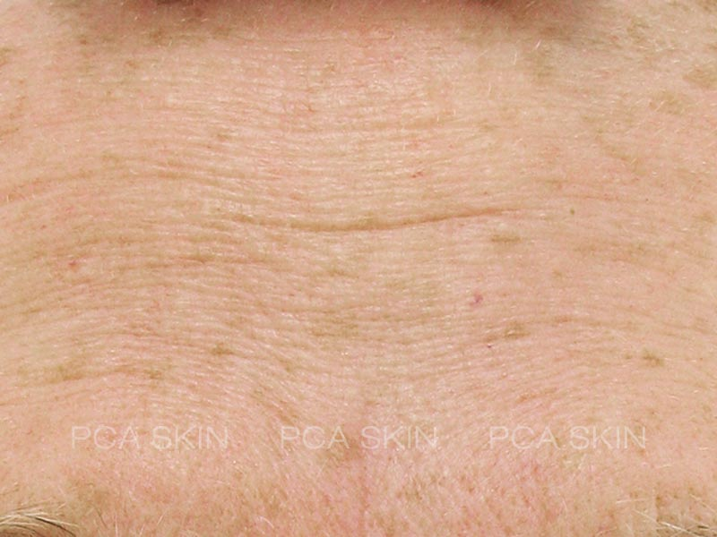wrinkling and hyperpigmentation-before-2